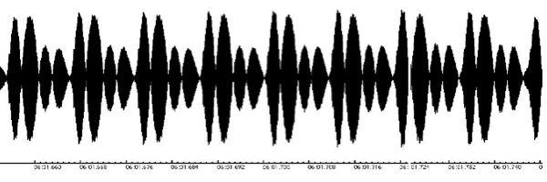 Audio Waveform 3