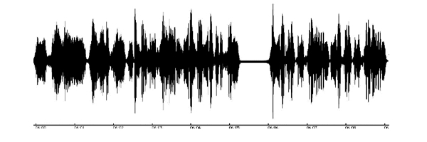 Audio Waveform 1